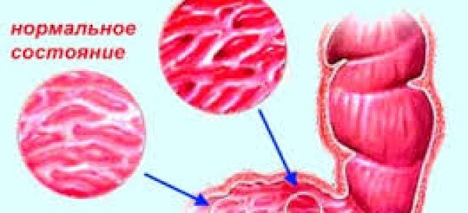 Проявления туберкулеза кишечника, желудка и печени