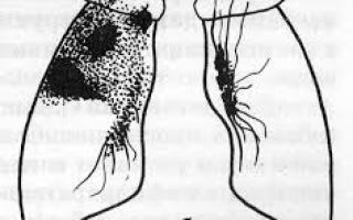 Причины рецидива туберкулеза: симптомы, лечение, профилактика