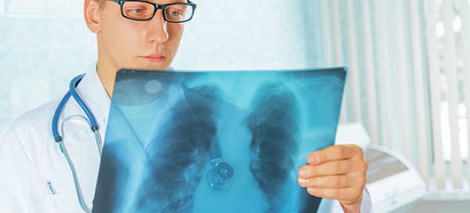 Как отличить туберкулез и рак легких и не только, схема дифдиагностики