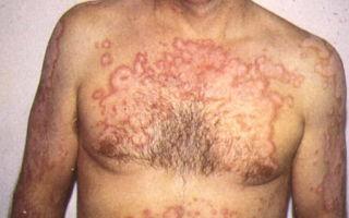 Виды кожного туберкулеза, диагностика и лечение