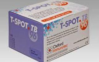 О Ти спот тесте — новое в диагностике туберкулеза