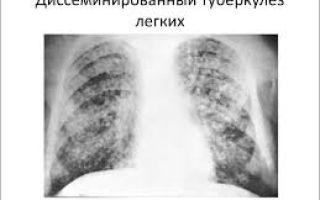 Фазы диссеминированного туберкулеза легких — инфильтрация, распад и обсеменение