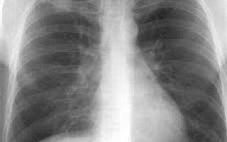 Видно ли на флюорографии рак, туберкулез и последствия курения