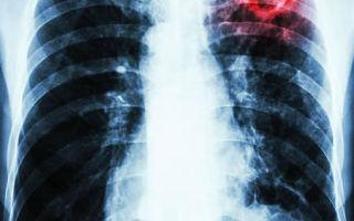 Первые признаки открытой формы туберкулеза, как обнаружить и как вылечиться?