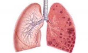 Причины фиброза легких, и как его вылечить полностью