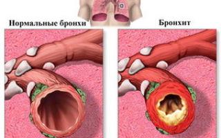 Причины, симптомы и лечение гнойного бронхита