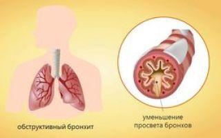 Обструктивный бронхит у детей: симптомы, лечение