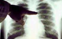 На рентгене видны кальцинаты в легких- повод срочно посетить врача!