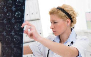 Виды очагового туберкулеза лёгких: заразен он или нет, как излечиться