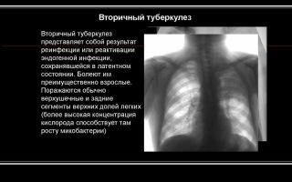 Симптомы вторичного туберкулеза легких, лечение, профилактика
