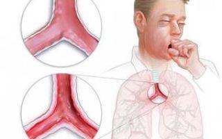 Лечение хронического и острого трахеобронхита лекарствами