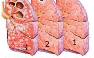 Признаки и исходы стадий туберкулеза легких, как поставить диагноз и лечить
