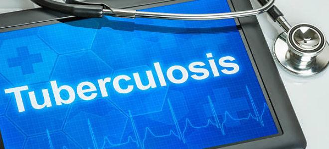 Обзор о туберкулезе: туберкулёз — признаки, как передается, формы, лечение, прогноз