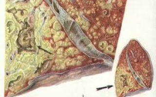 Признаки казеозной пневмонии, причины казеозного некроза, течение, прогноз