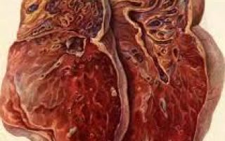 О цирротическом туберкулёзе: характеристика, лечение, прогноз