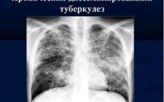 Причины хронического туберкулеза, когда и у кого бывает, как лечить и предупредить
