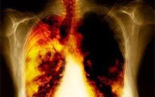 Сходства и отличия туберкулеза и рак легких, особенности кровохарканья при раке легких