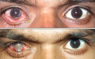 Симптомы туберкулеза глаз, его выявление и лечение