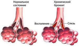 Изменения в лёгких при перибронхите, его симптомы и лечение