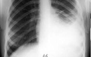 Особенности туберкулезного плеврита — симптомы, диагностика, лечение