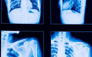 Современные принципы и схемы лечения туберкулеза легких