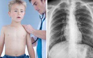 Эффективное лечение бронхита у детей в домашних условиях