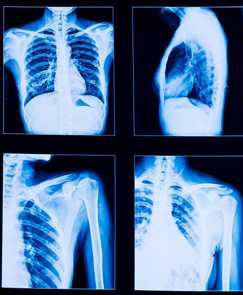 Рентгенограмма больного туберкулезом