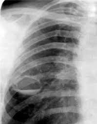 каверна на рентгене