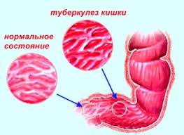 Поражение кишечника