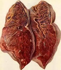 препарат с цирротическими изменениями в легких