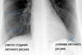 Флюорография курящего
